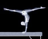 Gymnast on a beam,X-ray artwork