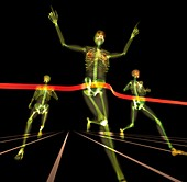 Athletes finishing a race,X-ray artwork
