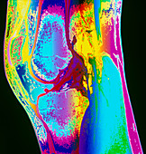 Coloured MRI of a section through a knee joint
