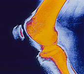 Coloured X-ray of a human knee joint (side view)