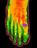 Coloured X-ray of a healthy foot (top view)