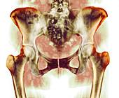 Healthy hip bones,X-ray