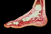 Foetal foot