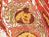 Plasma cell,TEM