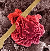 Macrophage ingesting debris,SEM