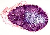 Lymph node,light micrograph