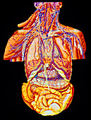 Artwork of abdominal and thoracic nerves