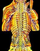 Coloured artwork of spinal column & spinal nerves