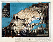 Artwork of MRI brain scan on map of California