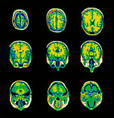 Coloured MRI scans of the brain,horizontal view