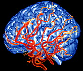 Brain and arteries,3-D MRA scan