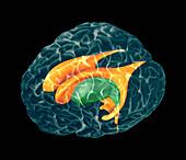 Ventricles of brain,MRI