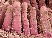 Food debris in the small intestine