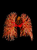 Resin cast of the airways & arterie of the lungs