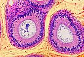 Human epididymis,light micrograph