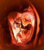 9 month foetus,MRI scan