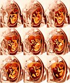 9 month foetus,MRI scans