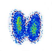 Thyroid gland,scintigram
