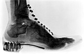 Early X-ray of a boot worn by a woman,1896