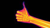 Thumbs-up, X-ray