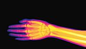 Rock paper scissors, X-ray