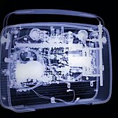 X-Ray of a radio