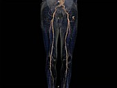 Leg arteries, angiogram