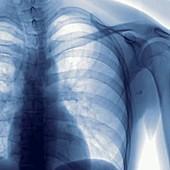 Angioplasty, angiography