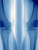 Leg angiography