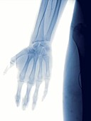 Hand angiography