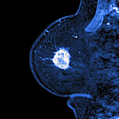 Breast cancer, MRI sequence