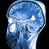 Brain injury, MRI scan sequence