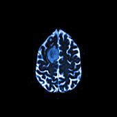 Glioma brain tumour, MRI sequence