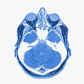 Multiple sclerosis, brain MRI sequence