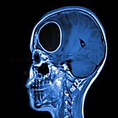 Brain abscess, MRI sequence