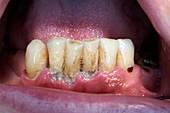 Gum disease caused by plaque