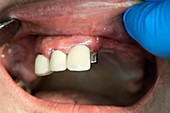 Dental bridge denture attachment