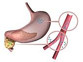 Type 1 diabetes,illustration