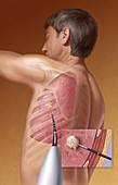 Radiofrequency Ablation of Lung Tumor