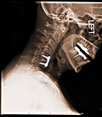 Spinal Fixation