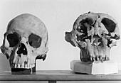 Australian Aborigine and Paranthropus Sku
