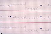 Multifocal Atrial Tachycardia EKG