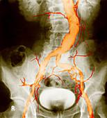 Atheroma in Aorta and Iliac Arteries