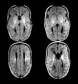 Agenesis of the Corpus Callosum,MRI