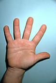 Acromegalous Hand
