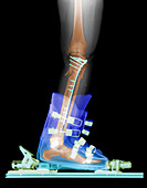 X-ray of Broken Bones in Ski boot