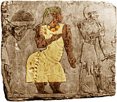 Muscular Dystrophy,Ancient Egypt
