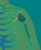 Reverse Shoulder Prosthsis
