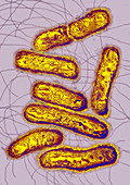 Salmonella bacteria,TEM