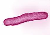 Mycobacterium tuberculosis,LM